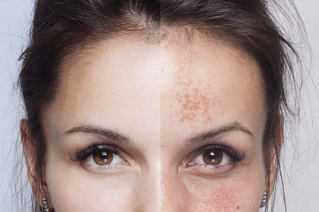 O mamão pode ser usado para clarear as manchas do rosto