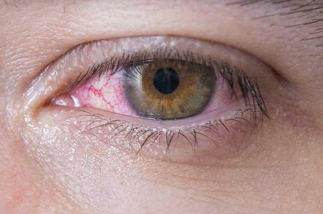 A conjuntivite pode ser causada por substâncias tóxicas, bactérias, vírus e alergias