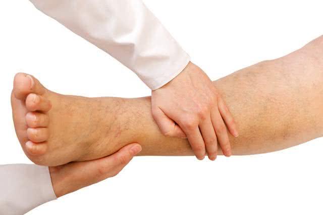 Tratando pés inchados naturalmente