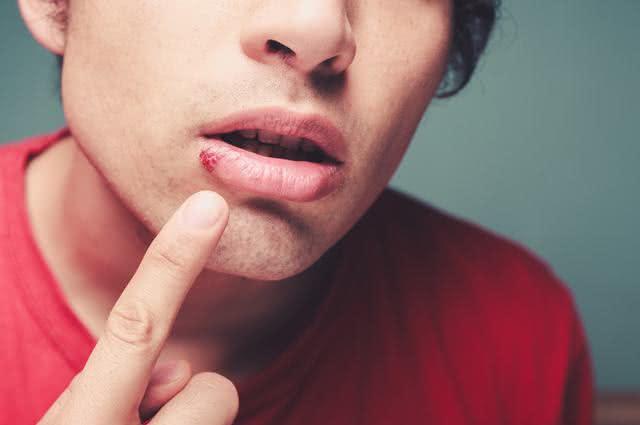 Tratamentos naturais contra herpes labial
