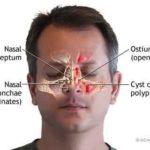 Inalações poderosas para a sinusite!