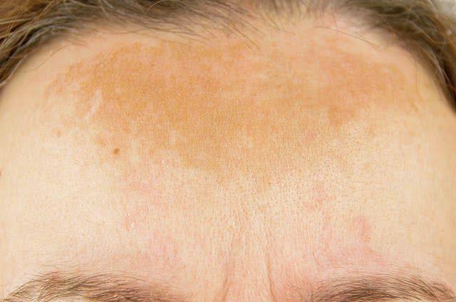 As manchas escuras do rosto geralmente aparecem durante a gravidez
