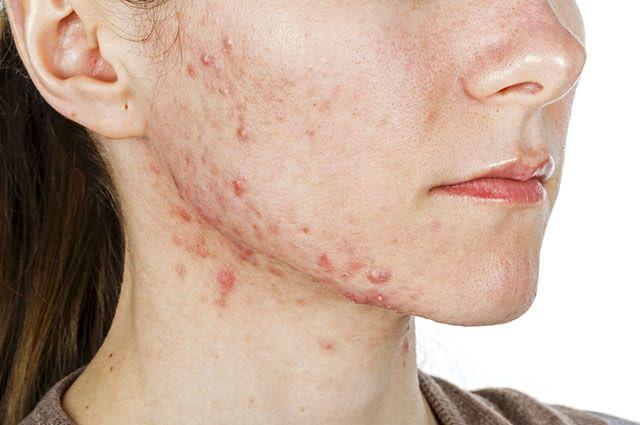 Receitas caseiras podem amenizar as manchas causadas pelas espinhas