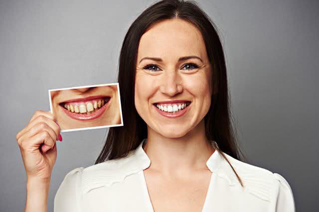 Adeus, sorriso amarelo: Clareie seus dentes usando receitas caseiras!