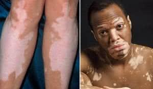 remedio-caseiro-para-quem-sofre-de-vitiligo