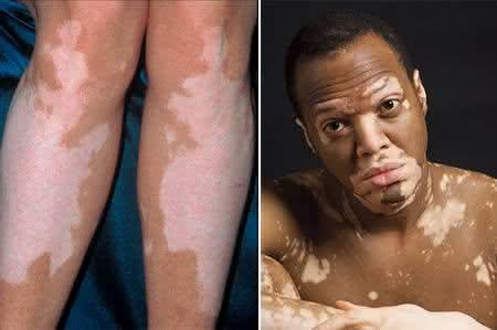 Aparência da pele com vitiligo