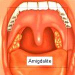 Como combater a amigdalite com remédios naturais