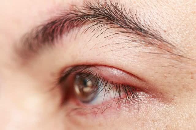 Olhos com terçol