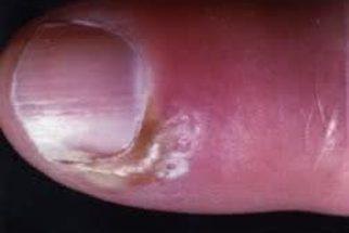 Use tratamentos naturais para curar panarício