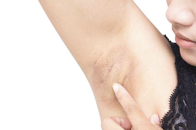 Atrito, depilação e fatores genéticos são algumas das causas das axilas e virilha escurecidas
