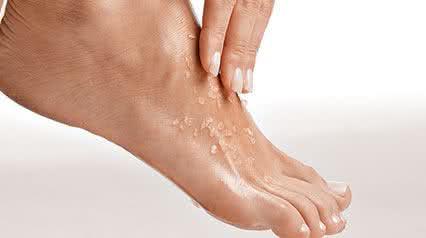 Calos nos pés tem solução através de tratamentos caseiros