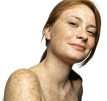 Como clarear sardas e manchas no rosto com receitas caseiras?