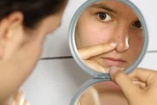 Remova os cravos com cremes naturais e tratamentos caseiros!