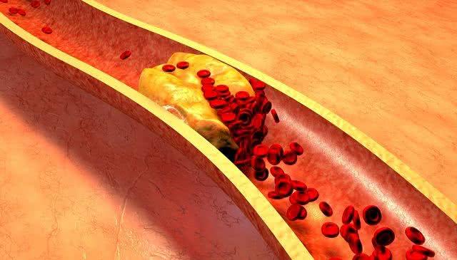 Pressão exercida pelo sangue na artéria nada mais é do que a hipertensão