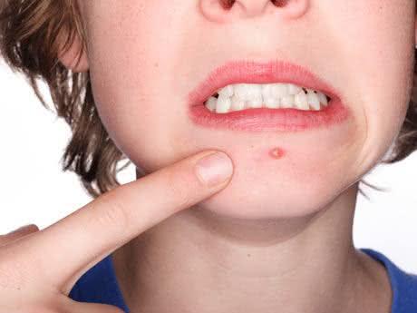Acne - um problema de pele que afeta adolescentes e adultos