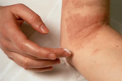 Formas naturais de tratar o eczema
