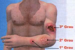 Imagem com os três principais tipos de queimadura