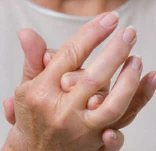 Tratamentos naturais para artrite