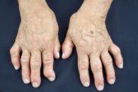 Como cuidar da artrite com tratamentos naturais?