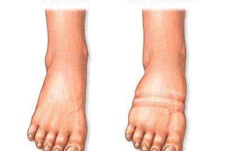 Livre sua pele da Erisipela com tratamentos alternativos