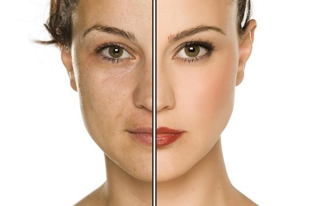 Imagem de mulher com a pele desgastada e sadia