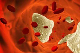Os benefícios do amaranto para o colesterol