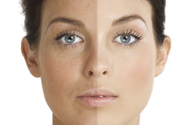As manchas na pele não possuem causas definidas