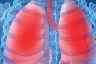 Chás para tratar pneumonia
