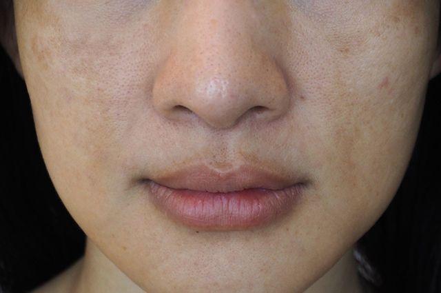 Mulher com rosto manchado