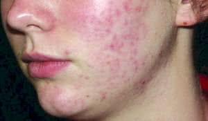 alimentos-que-pioram-a-acne