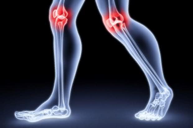 Chá que trata artrose naturalmente