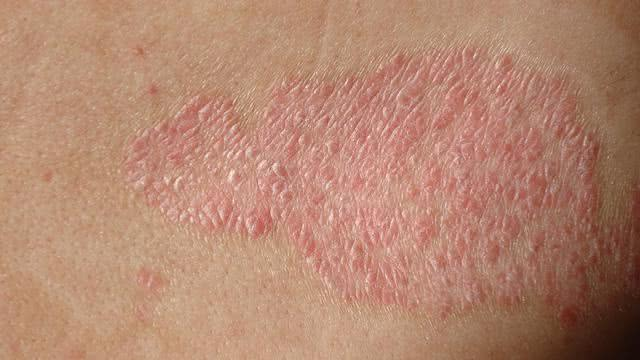 Remédios caseiros para dermatite
