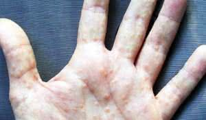 remedios-caseiros-para-disidrose