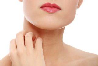 Dermatite de contato: tratamento eficaz com medicamentos naturais