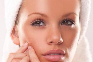 Eficazes métodos caseiros contra as manchas da acne