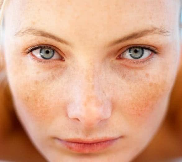 Melasma surge quando a pele é exposta ao sol; trate o problema com receitas caseiras