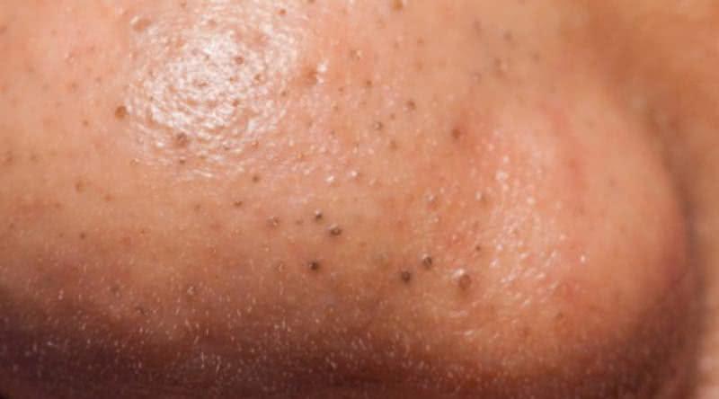 Cera caseira para eliminar cravos da pele