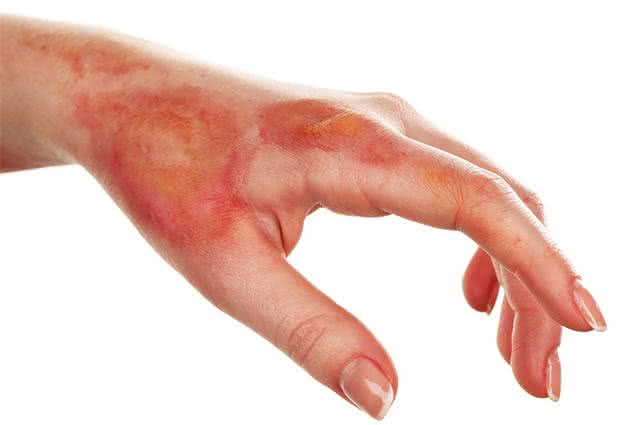 Imagem de mão com queimaduras
