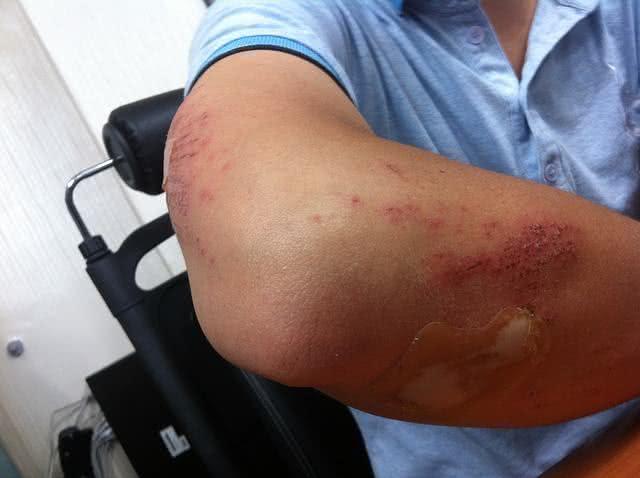 Receita de bálsamo eficaz para tratar ferimentos leves