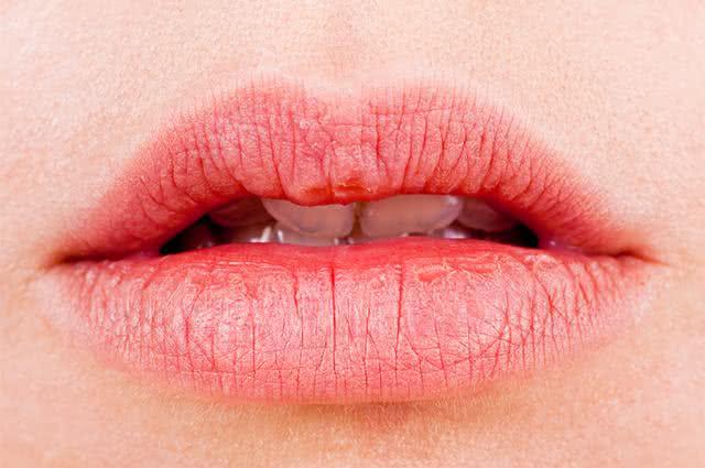 Cure os lábios rachados com fita durex