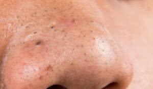 elimine-pontos-negros-da-pele-com-incrivel-removedor-caseiro