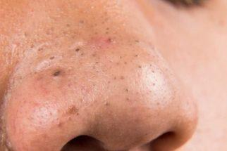 Cravos: Elimine pontos negros da pele com incrível removedor caseiro