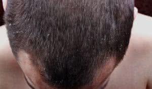 Symptoms of the disease psoriasis in hair