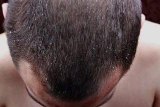 5 efeitos negativos da caspa nos cabelos, aprenda como tratar