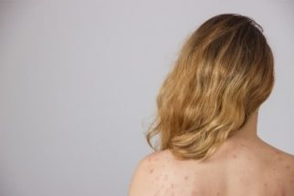 Aprenda 6 receitas caseiras para tratar a acne das costas
