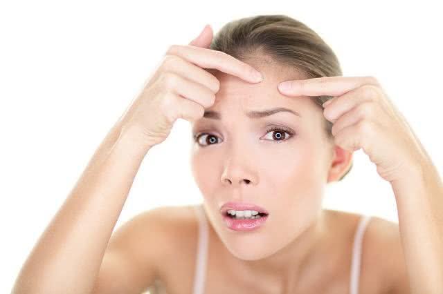 Aplique este tônico e a acne não voltará a atormentar sua pele