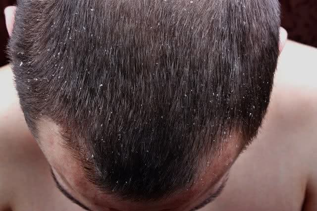 Médico dá dicas infalíveis de como evitar a caspa no couro cabeludo