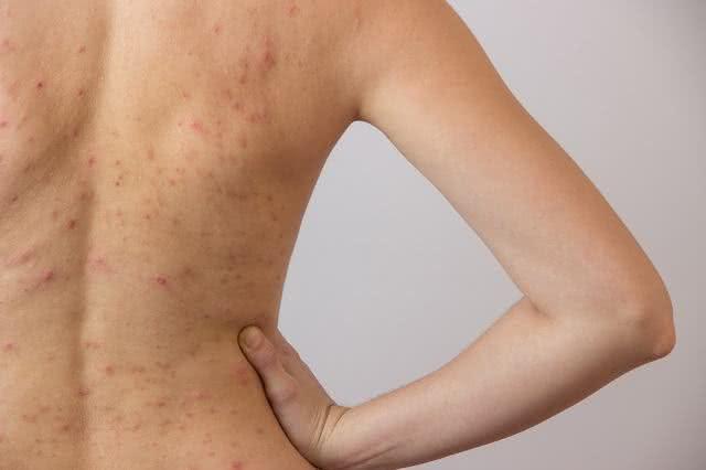 Descubra qual é o produto natural que elimina as espinha das costas