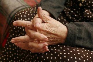 Remédios caseiros para aliviar os sintomas da artrite