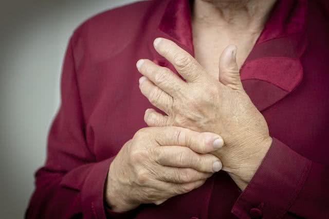 Artrite reumatoide pode deformar articulações de maneira irreversível